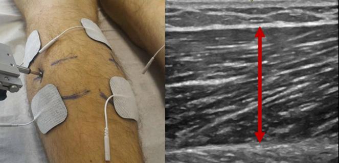 ultrasound_tmg_calf.png